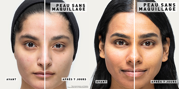 Skin Hero Avant/Après